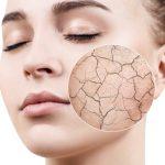 skin-hydra