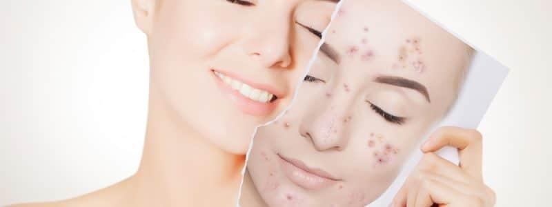 skin-pure